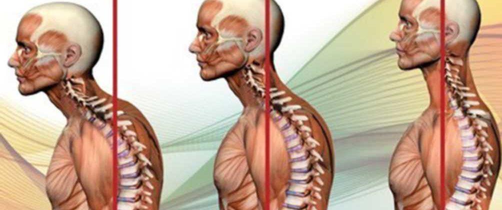 alterazioni posturali